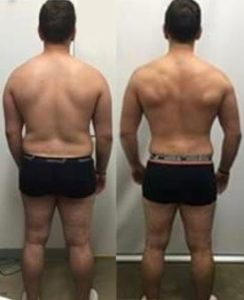 A coburg personal training client's before and after showing his back.